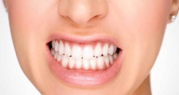 علت-دندان-قروچه