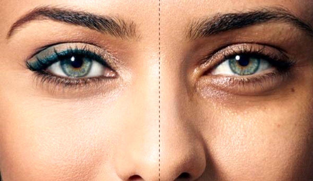 چگونه سیاهی دور چشم را ازبین ببریم؟