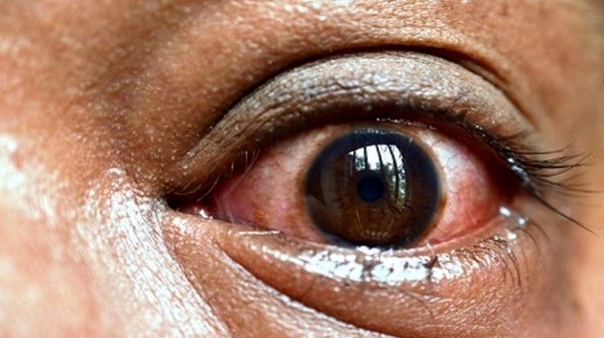 قارچ سیاه را جدی بگیرید/وضعیت بحرانی این بیماری در کشور